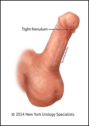 Penis frenectomy Ireland