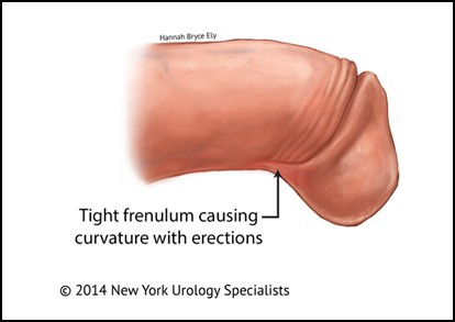 Penile frenulectomy DUBLIN
